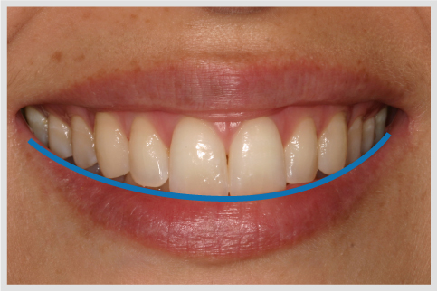 Incisal edge configuration